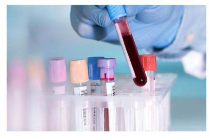 Diferentes test diagnóstico COVID-19