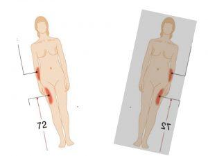 Lipoatrofia semicircular solicitud evaluación campos electromagnéticos